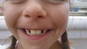 Diane perd une dent à ce moment là...